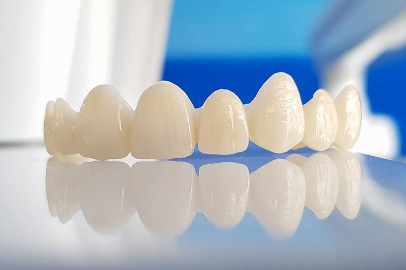 Bọc răng sứ Titan vẫn tồn tại đồng thời những điểm mạnh và hạn chế