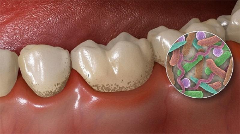 Trong vôi răng có rất nhiều vi khuẩn gây hại