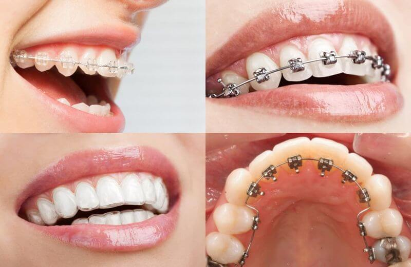 Phương pháp niềng răng giúp điều chỉnh được những vấn đề răng miệng phức tạp