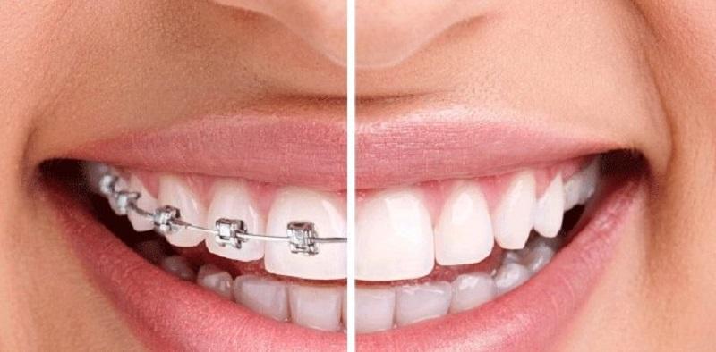 Nhiều người băn khoăn không biết nên niềng răng hay bọc răng sứ