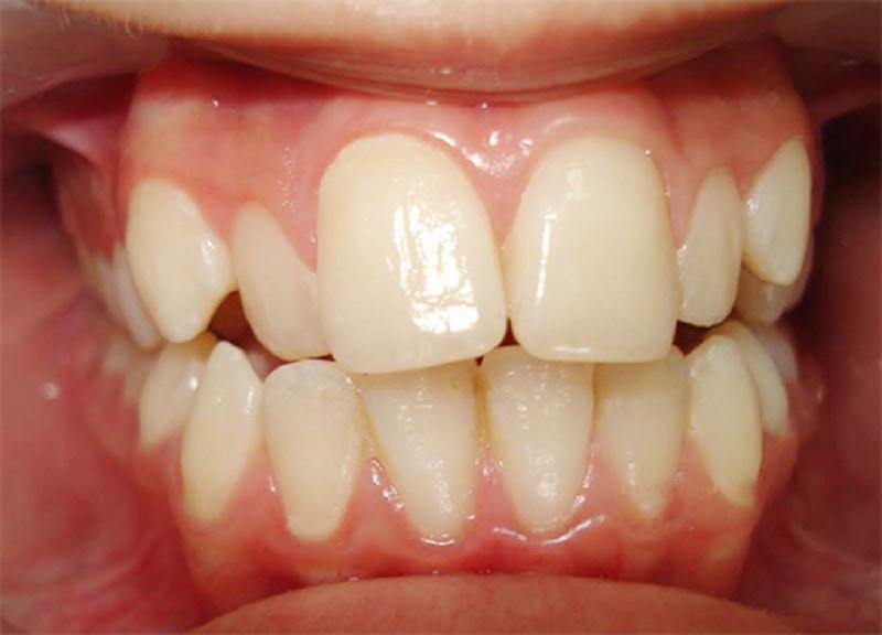Hình ảnh răng cửa bị to gây mất thẩm mỹ