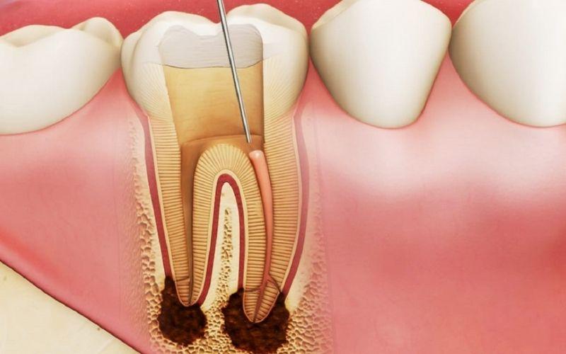 Bác sĩ sẽ chỉ định nhổ trong trường hợp răng bị sâu nặng và ăn vào đến tủy răng không thể khắc phục được