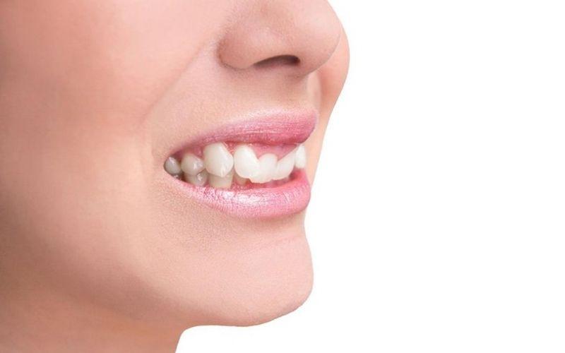Vì sao trên hàm răng của chúng ta lại xuất hiện những chiếc răng khểnh đặc biệt