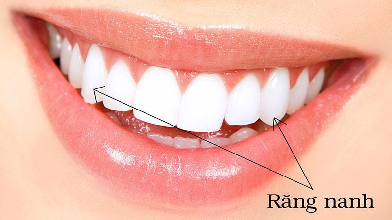 Răng nanh thuộc nhóm răng phía trước, nằm ở vị trí thứ 3 từ răng cửa mỗi bên