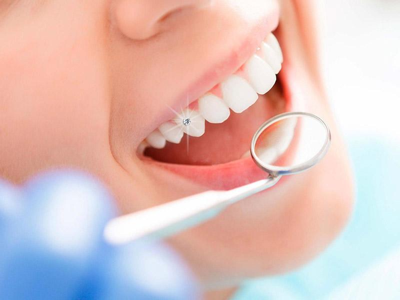 Răng nanh nếu mọc lệnh thì gọi là răng khểnh