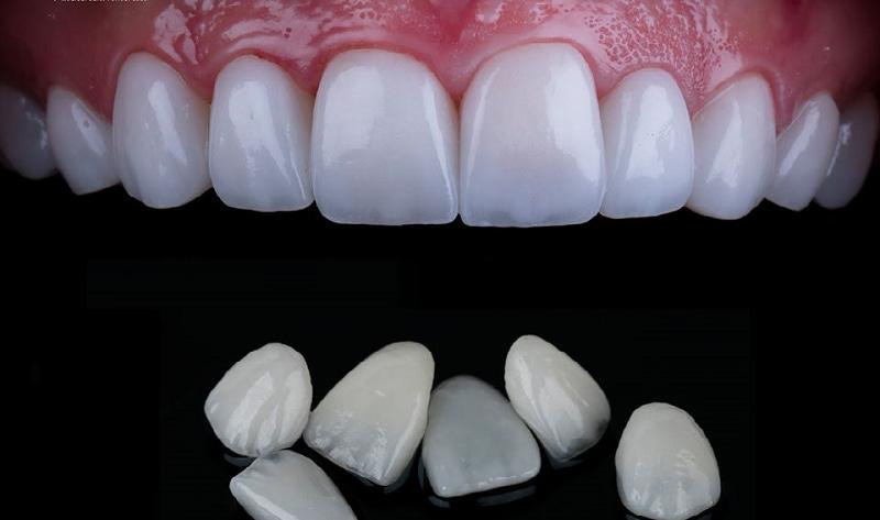 Răng sứ Veneer được thiết kế rất mỏng nhưng lại có độ cứng cực cao