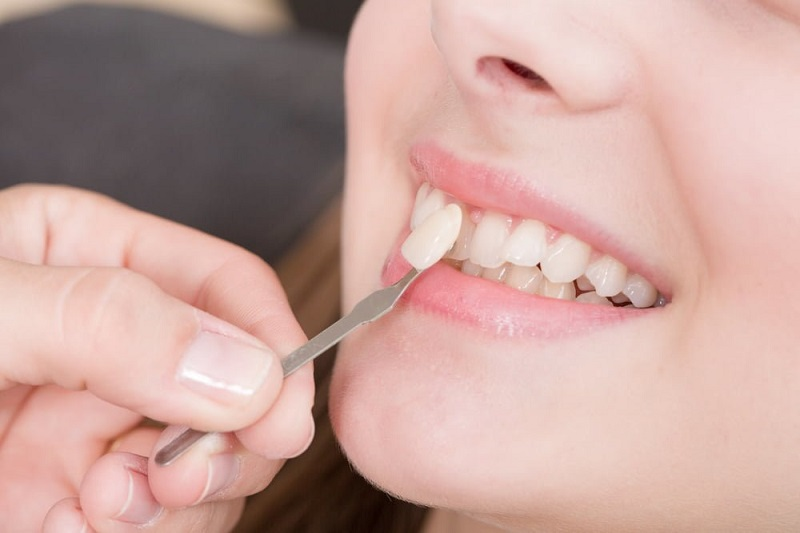 Để dán sứ veneer, bạn chỉ cần mài răng với tỉ lệ rất nhỏ