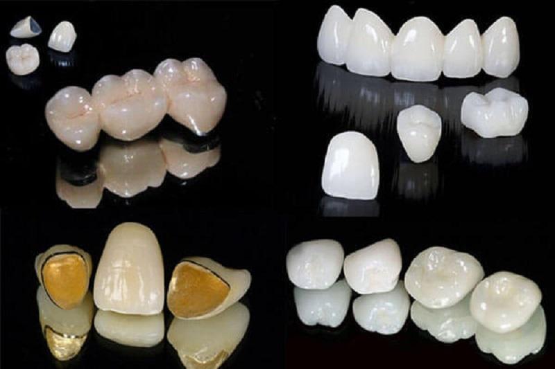Chi phí bọc răng sứ trả góp phụ thuộc vào chất liệu mão sứ