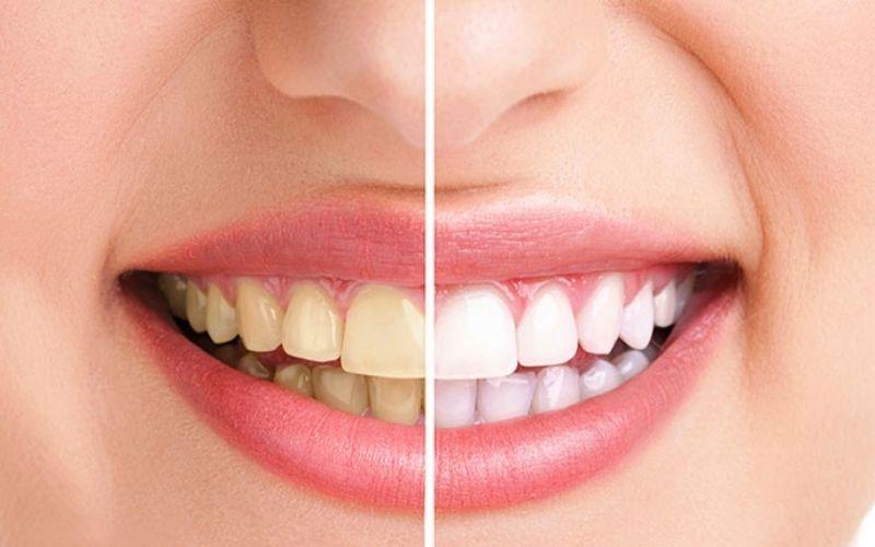 Có nên bọc răng sứ không - Nên bọc sứ khi răng biến màu