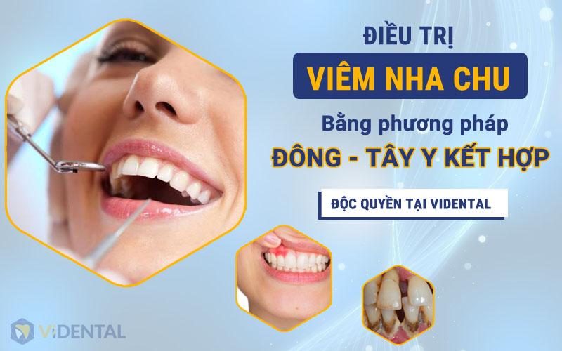 Phương pháp điều trị viêm nha chu Đông Tây y kết hợp tại Vidental