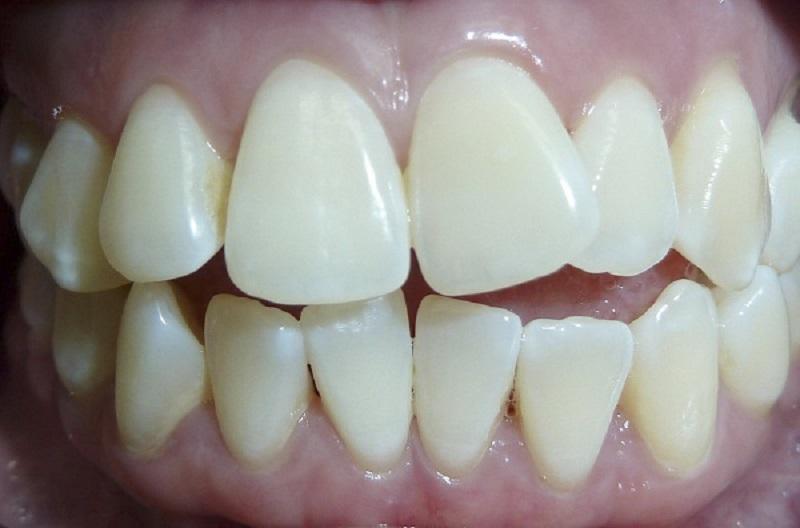 Khi nào nên bọc răng sứ - Khi răng bị khấp khểnh