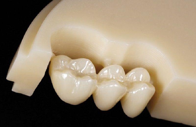 Răng sứ toàn sứ được làm từ sứ nguyên khối
