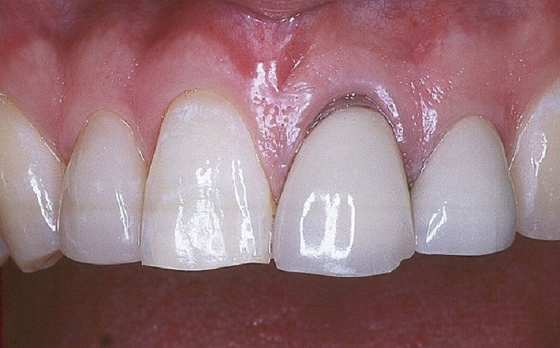 Răng sứ kim loại thường có nguy cơ bị oxy hóa