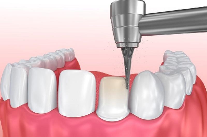 Quá trình mài răng đòi hỏi sự cẩn trọng, tỉ mỉ của nha sĩ
