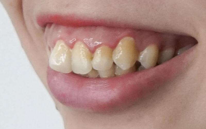 Nếu răng hô quá nhiều cần cân nhắc kỹ trước khi làm sứ