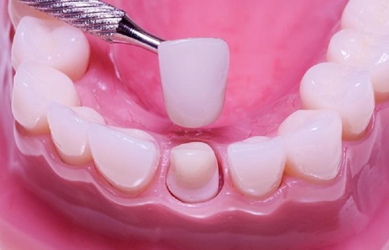 Các mão sứ được gắn vào cùi răng bằng một chất kết dính chuyên biệt