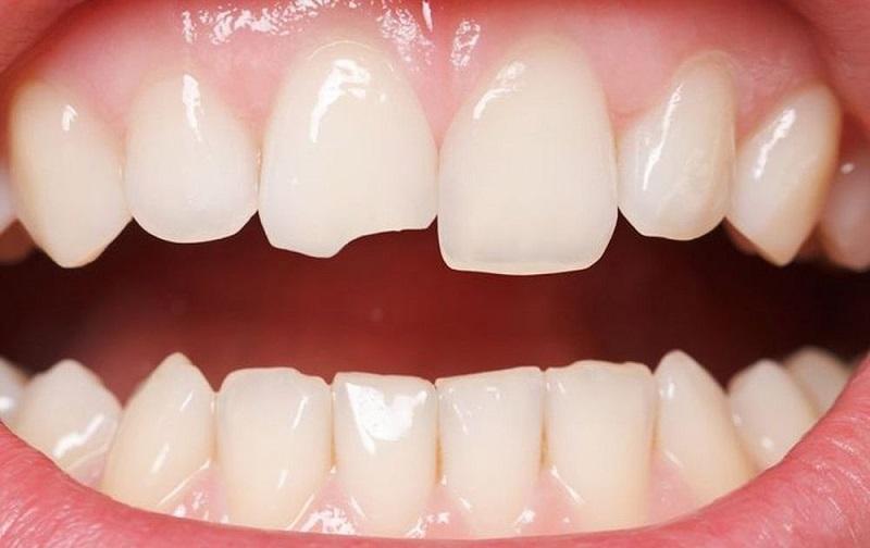 Răng sứt mẻ có thể do nhai cắn các vật cứng