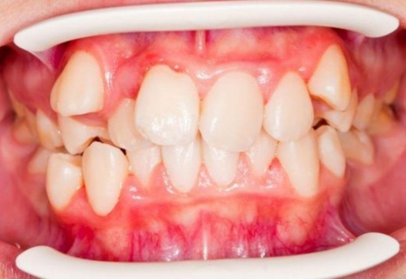 Răng khấp khểnh là gì