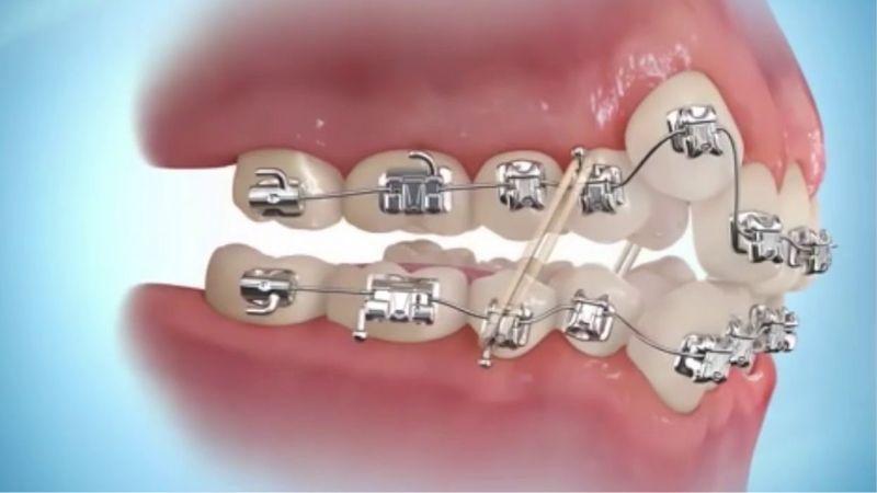 Niềng răng là phương pháp được nhiều người lựa chọn