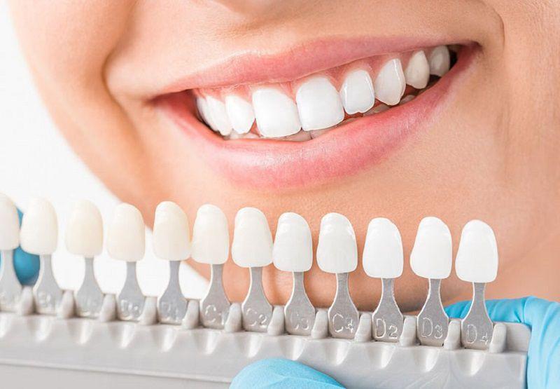 Bạn nên tìm hiểu trước về phương pháp và loại răng sứ định sử dụng