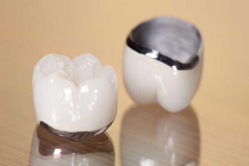 Nắm rõ các lưu ý trước và sau khi bọ răng sứ sẽ giúp bạn chủ động hơn trong quá trình thực hiện