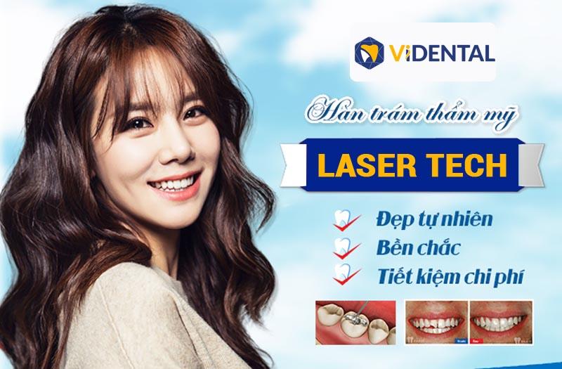 Ưu điểm công nghệ hàn trám răng Laser Tech